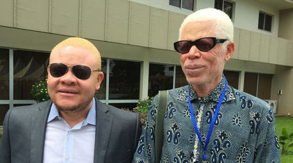 Two participants with oculocutaneous (OCA) albinism attending the conference in Douala. The person on the left is OCA2, the person on the right is OCA1.